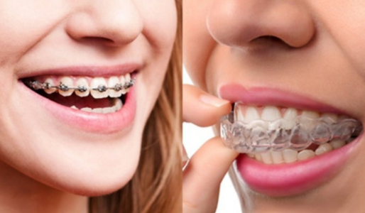 Braces or Invisalign